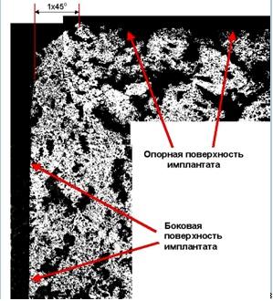 Имплантаты титановые шейных и грудных позвонков системы CVPI и TVPI